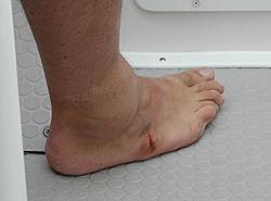 people hurt on boats-foot2.jpg