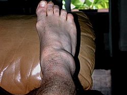 I think I sprained my ankle...Opinions???-ankle-ii.jpg