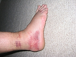 I think I sprained my ankle...Opinions???-img_0461.jpg